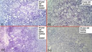 Weefsel van ABVD patiënten (boven links) lijkt meer follikels te tonen. Foto: Universiteit van Edinburgh